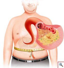 metabolic-syndrome-screenshot-1